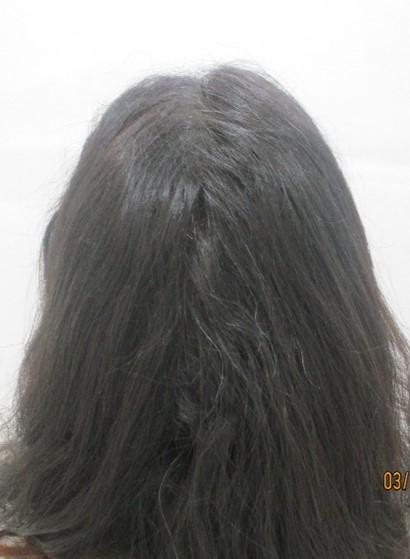 Nisha Rani After PRP Hair Treatment