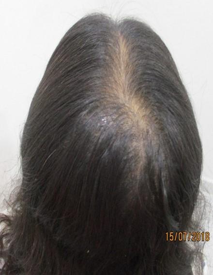 Nisha Rani Before PRP Hair Treatment