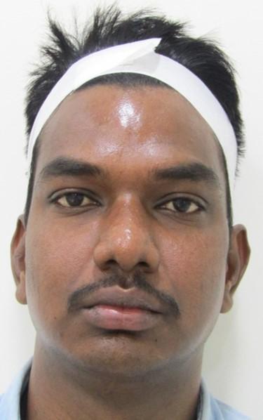 Skin Whitening Post Treatment