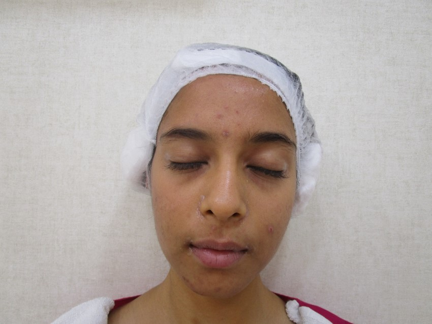 Roshni Giridharan After