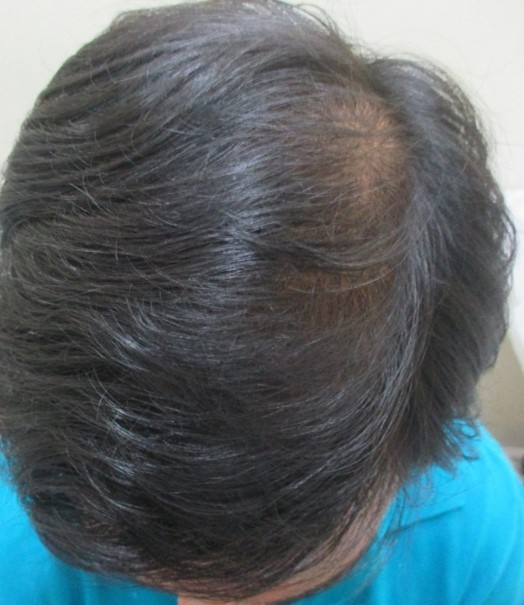 Sangamesh after PRP hair treatment
