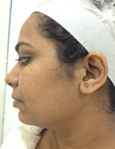 Laser Toning After Treatment