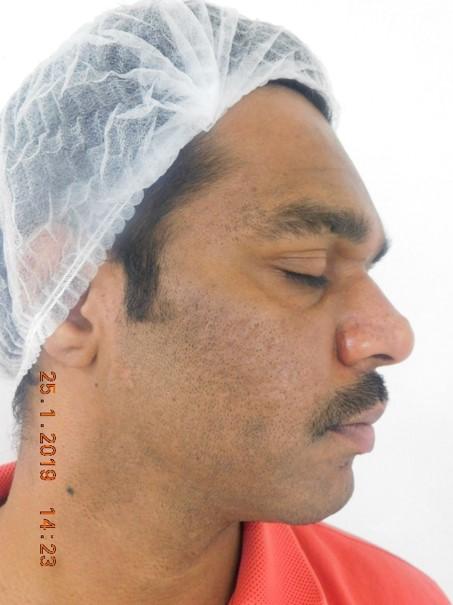 Suman Kumar After