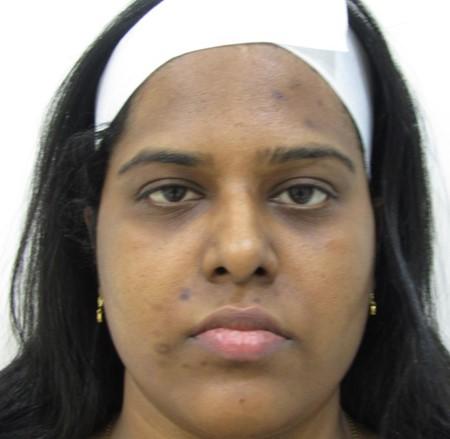 Skin Lightening Post Treatment