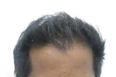 Vijay Prasanth Raj after PRP hair treatment