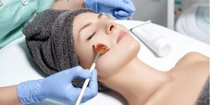 chemical peel treatment cost in india