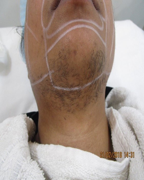 laser hair removal for chin before and after