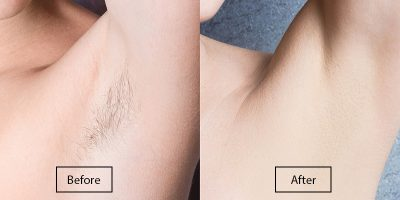 underarm-laser-hair-removal-before-after
