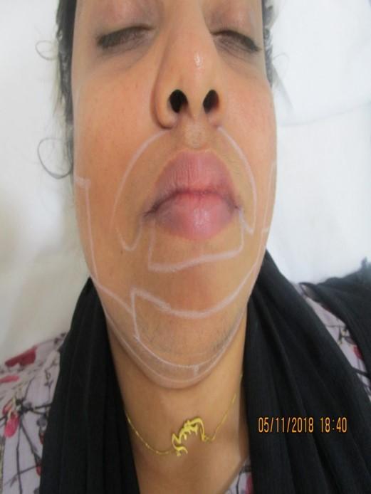 upper lip laser hair removal results
