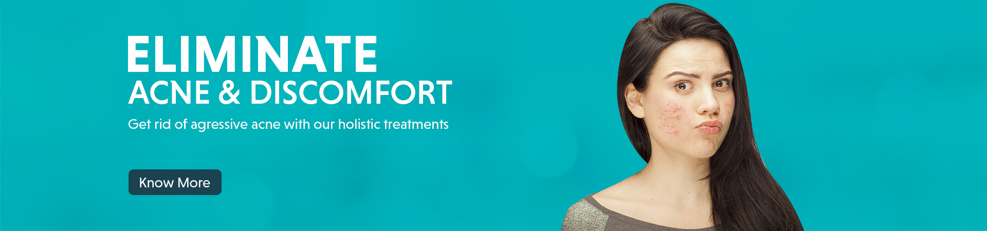 acne pimple treatment offer