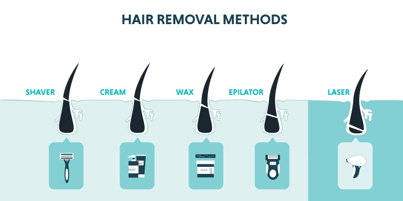 laser hair removal vs other hair removal methods