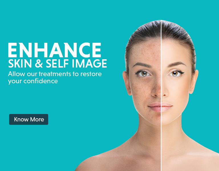 pigmentation removal offers