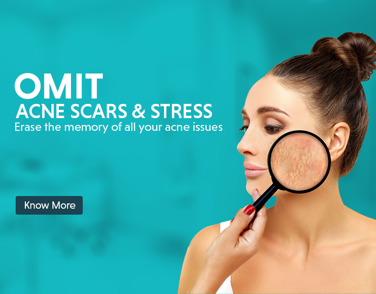 scar removal treatment offers