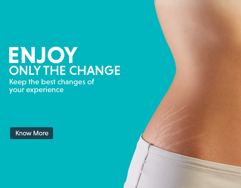 stretch marks removal treatment offers