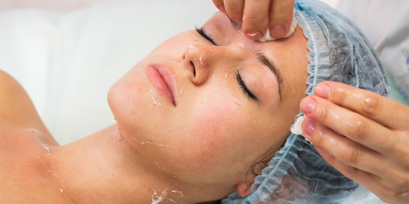 TCA Peel Treatment