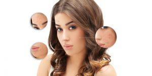 pimple acne scar removal kolkata