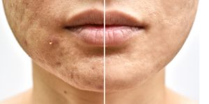 pimple and acne scar removal in kolkata