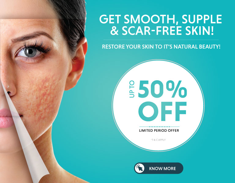 acne scar removal treatment offer