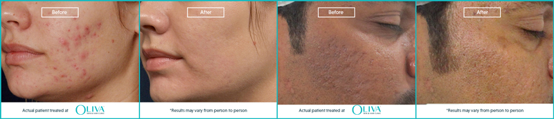 acne scar treatment in kolkata