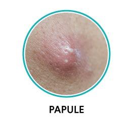 papules acne