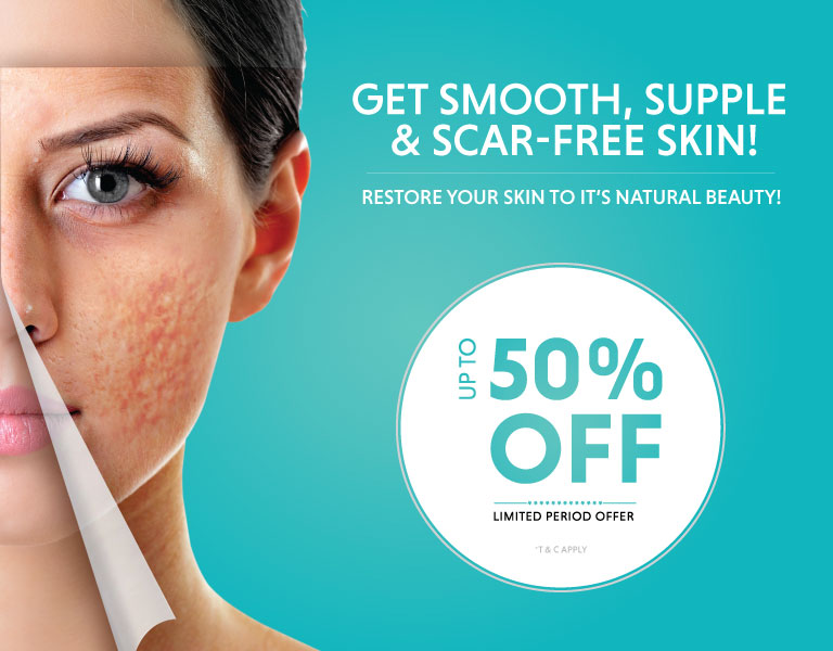 pimple scar treatment offer