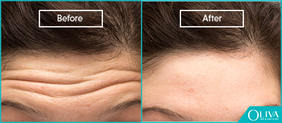 skin resurfacing for forehead lines
