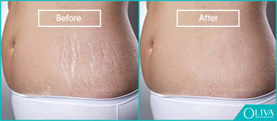 skin resurfacing for pregnancy stretch marks