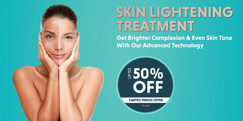 UPTO 50% Off on All Services
