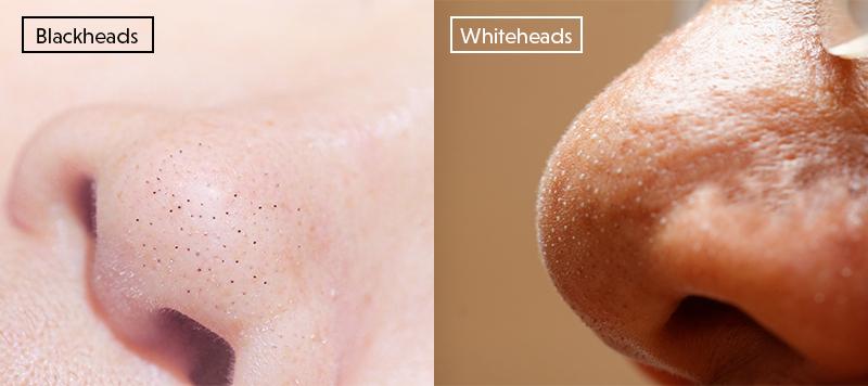 blackheads vs whiteheads