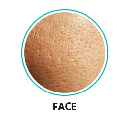 open pores on face