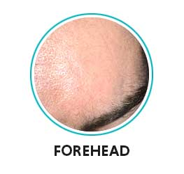 large pores on forehead
