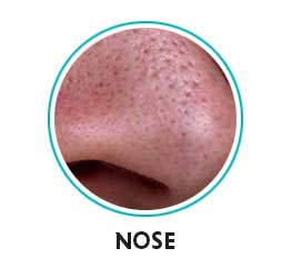 open pores on nose
