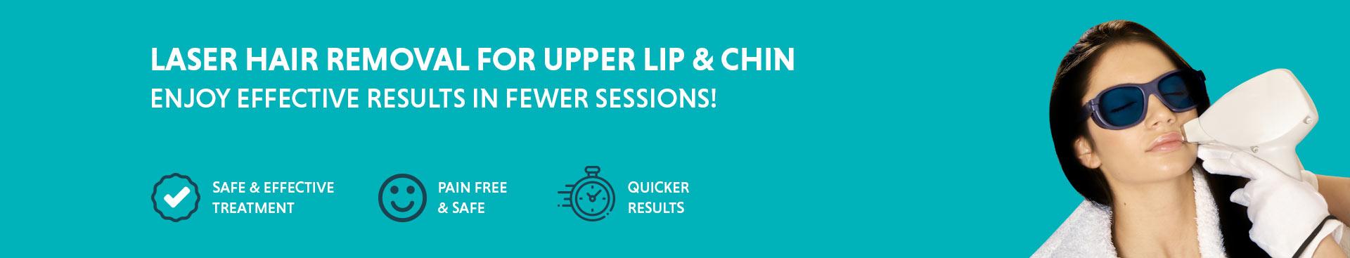 Upper lip laser hair removal