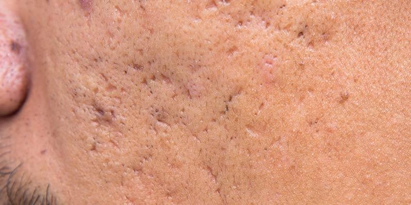 ice-pick-scar