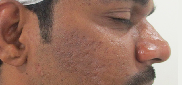acne scar treatment before-2[1]