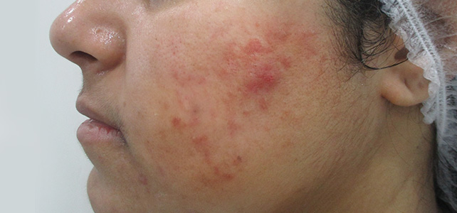 pimple treatment-before[1]