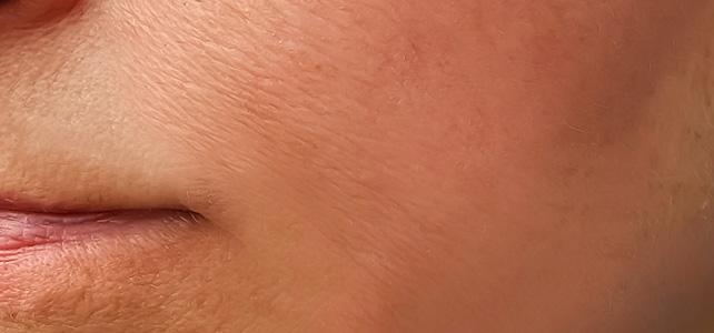after skin tightening