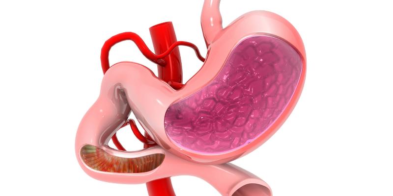 stomach-ballon-surgery